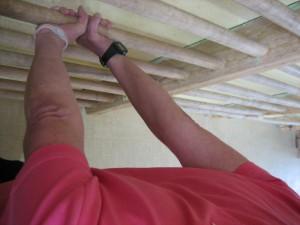 7 300x225 Salud : Ejercicios para la cifosis